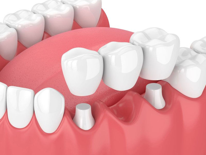 benefits of dental crowns photo