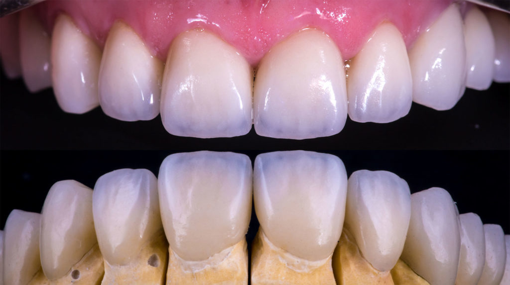 benefits of veneers photo