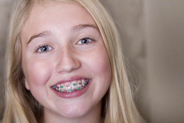 braces for kids photo image