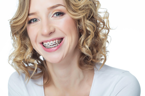 braces treatment for adults photo
