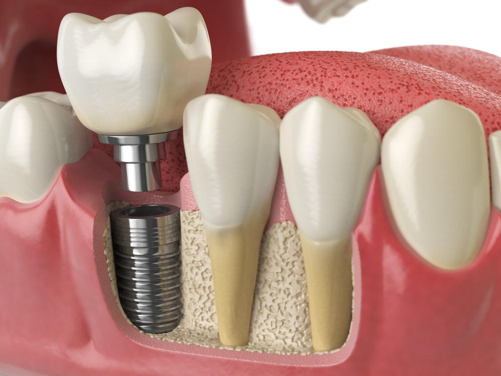 dental implants dundrum dublin photo