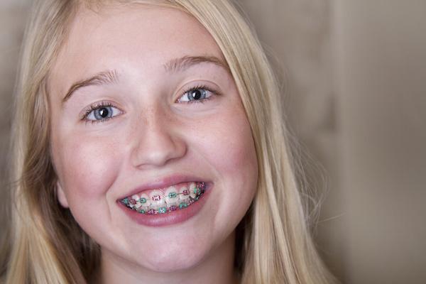 orthodontics for kids photo