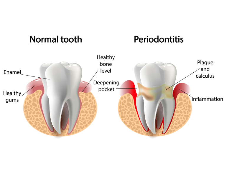 periodontal treatment in dundrum dublin