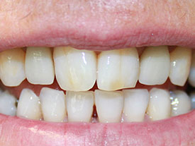 dental implant after case 2 photo