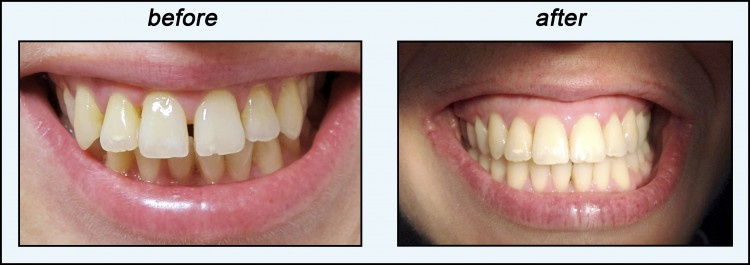 orthodontics for adults before and after photo