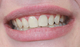 teeth whitening after women photo